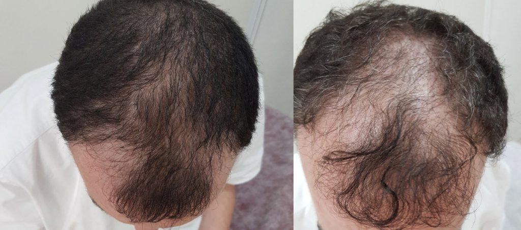 טיפול בנשירות שיער בראש והתקרחות לגברים בירושלים
